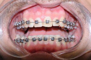 יישור שיניים - טיפולים אורתודונטים